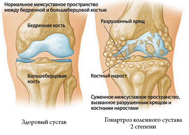 Gonartroz 2 degré de l'articulation du genou: le traitement et les ...